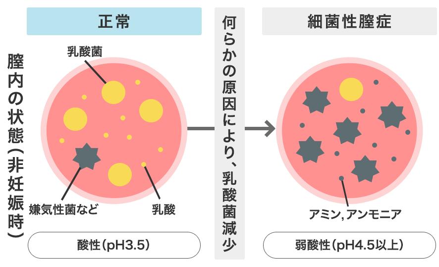 正常な膣内と細菌性膣症の膣内を比較